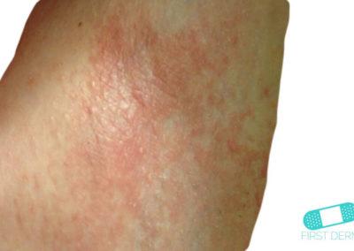 Irritative eczema (Irritant Contact Dermatitis) (01) leg [ICD-10 L24.9]