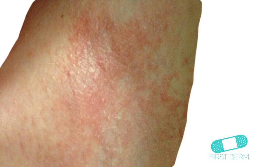 Irritative eczema (Irritant Contact Dermatitis) (01) skin [ICD-10 L24.9]