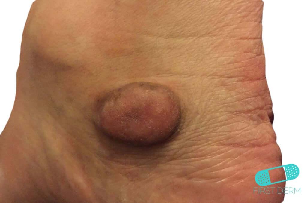 Keloid (Hypertrophic Scar) (04) foot [ICD-10 L91.0]