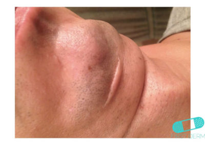 Keloid (Hypertrophic Scar) (13) chin [ICD-10 L91.0]