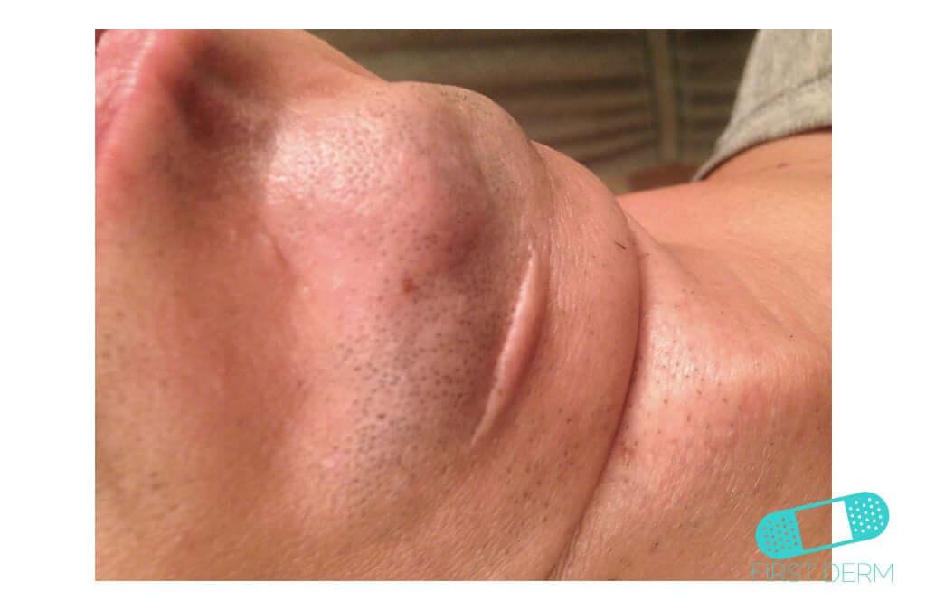 Keloid (Hypertrophic Scar) (13) chin [ICD-10 L91.0]