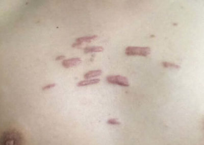 Keloid (Hypertrophic Scar) (15) chest [ICD-10 L91.0]