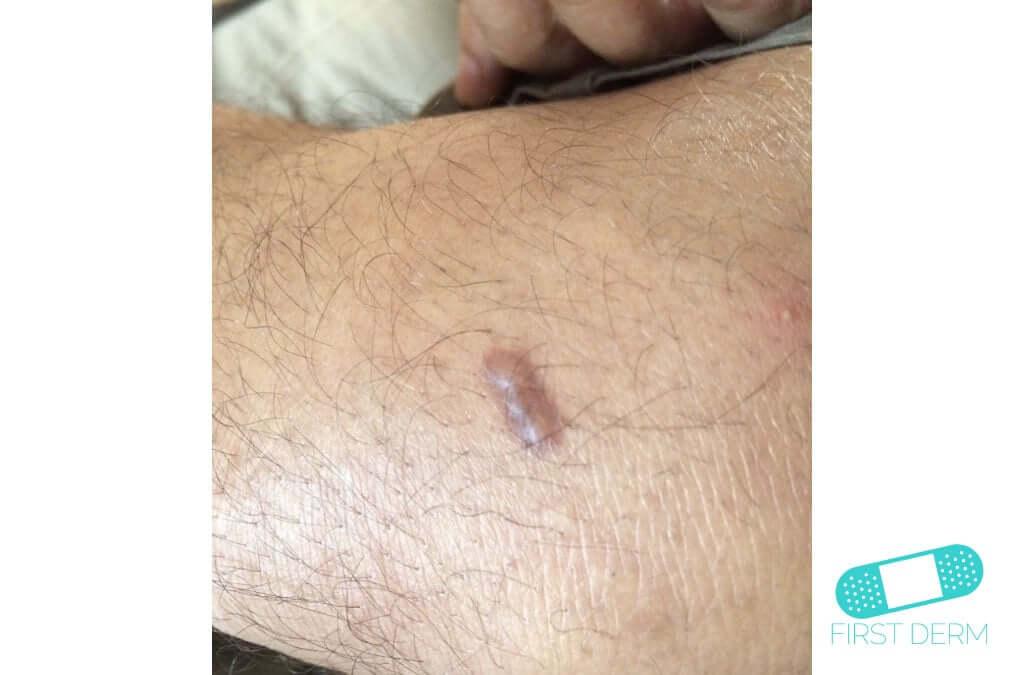 Keloid (Hypertrophic Scar) (16) arm [ICD-10 L91.0]