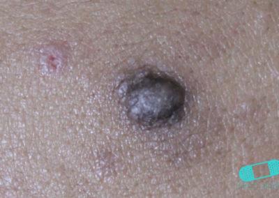 Keloid (hypertrofiskt ärr) (02) hud [ICD-10 L91.0]