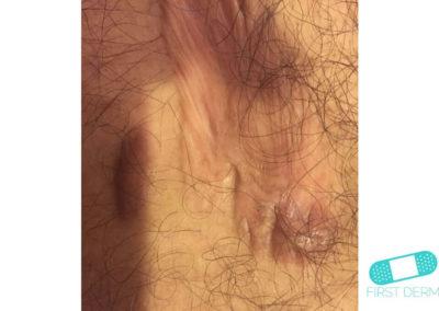 Keloid (hypertrofiskt ärr) (09) hud [ICD-10 L91.0]