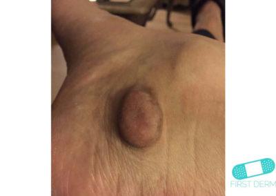 Keloid (hypertrofiskt ärr) (12) hud [ICD-10 L91.0]