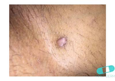 Keloid (hypertrofiskt ärr) (14) hud [ICD-10 L91.0]
