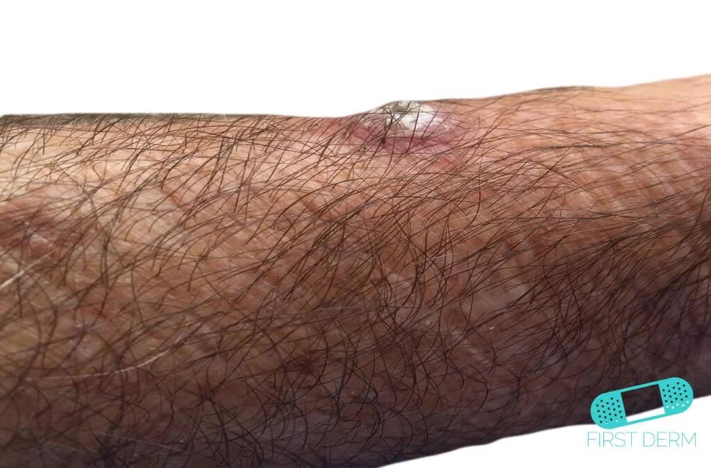 Keratoacanthoma (01) arm [ICD-10 L85.8]