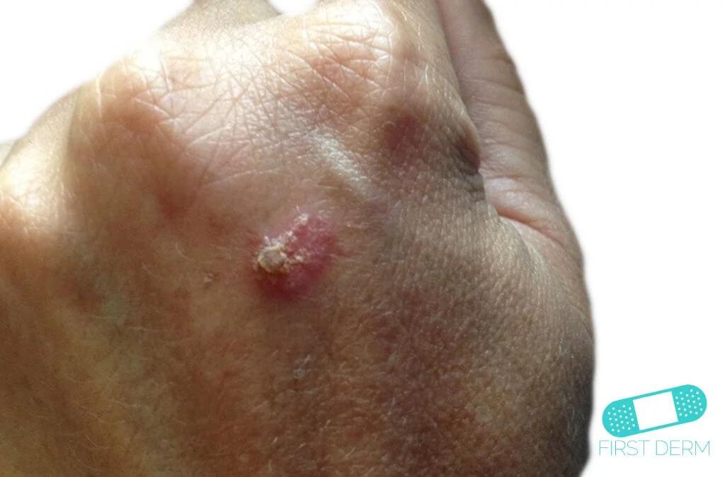 Keratoacanthoma (04) hand [ICD-10 L85.8]