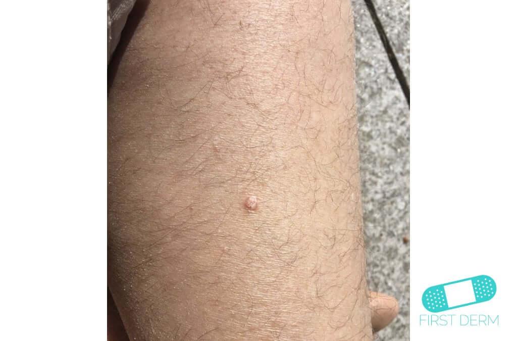 Keratoacanthoma (11) leg [ICD-10 L85.8]