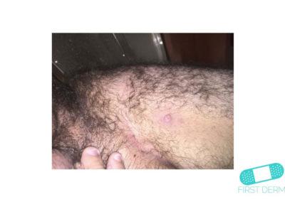 Keratoacanthoma (13) skin [ICD-10 L85.8]