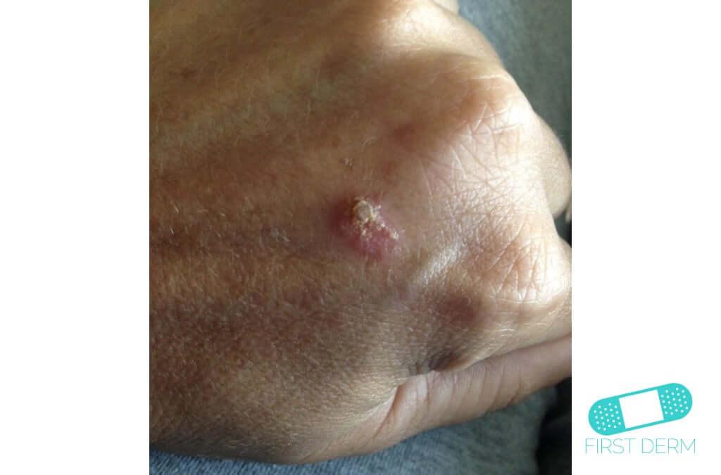 Keratoacanthoma (14) hand [ICD-10 L85.8]
