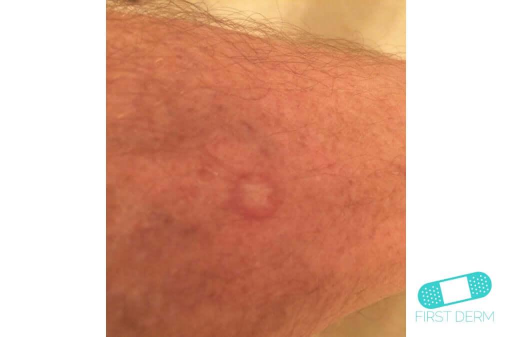 Keratoacanthoma (16) arm [ICD-10 L85.8]