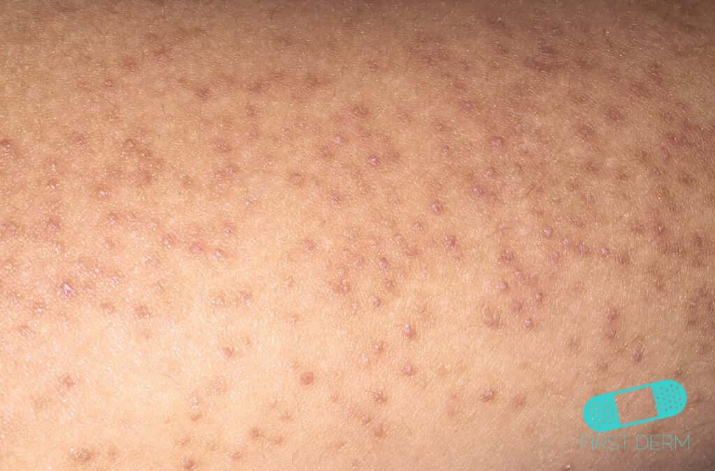 Keratosis Pilaris - Online Dermatology