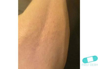Keratosis Pilaris (12) arm [ICD-10 L11.0]