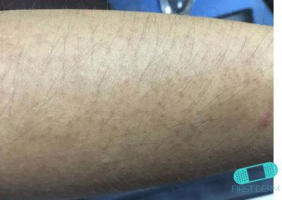 Keratosis Pilaris (17) arm [ICD-10 L11.0]