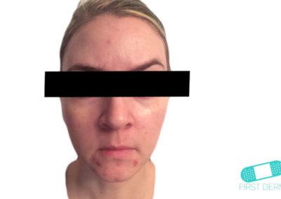 Komedoner (pormaskar) (01) ansikte [ICD-10 L70.0]