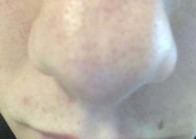 Komedoner (pormaskar) (08) näsa [ICD-10 L70.0]