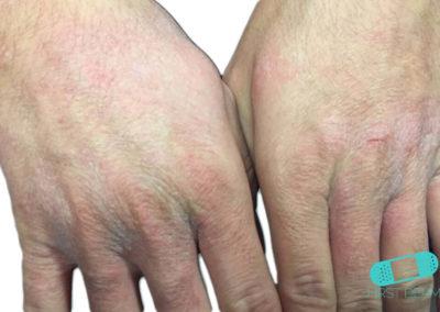 Kontakteksem (04) hand [ICD-10 L25.9]