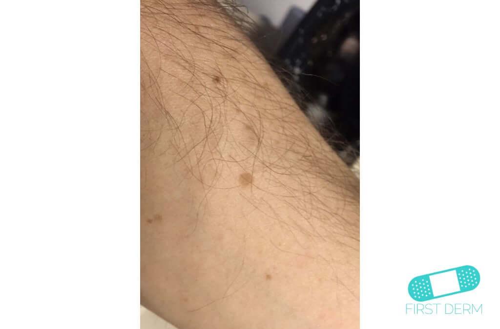 Lentigo solar (Manchas Hepáticas) (07) brazo [ICD-10 L81.4]