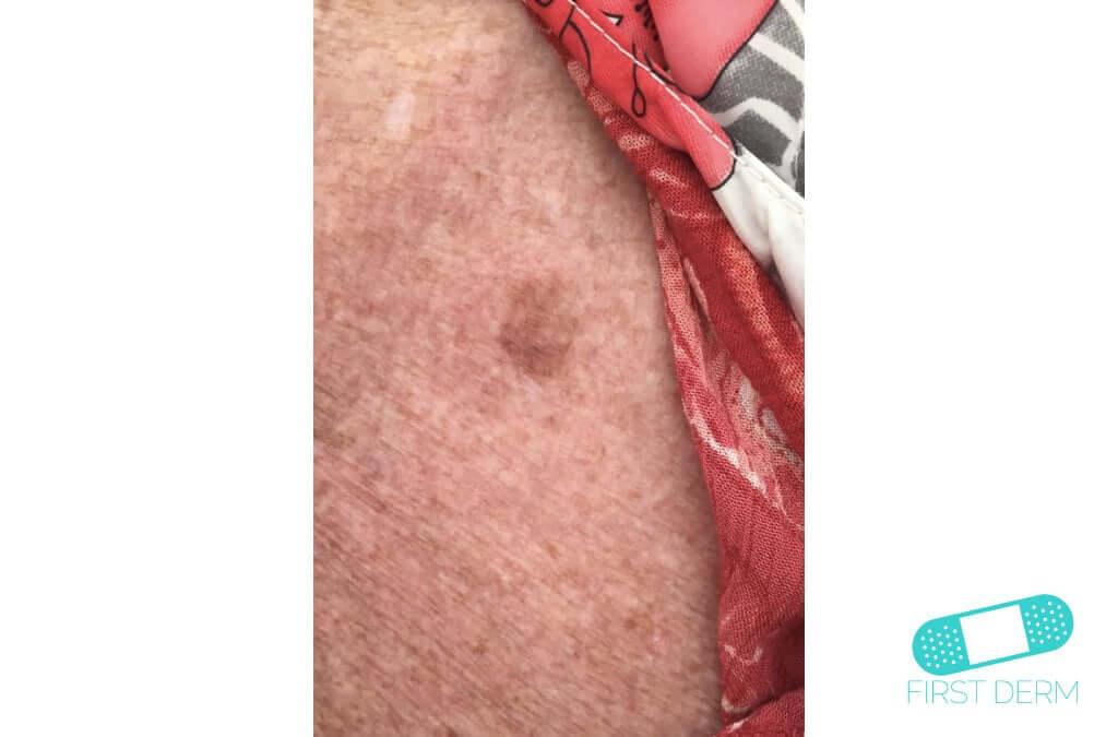 Lentigo solar (Manchas Hepáticas) (14) piel [ICD-10 L81.4]