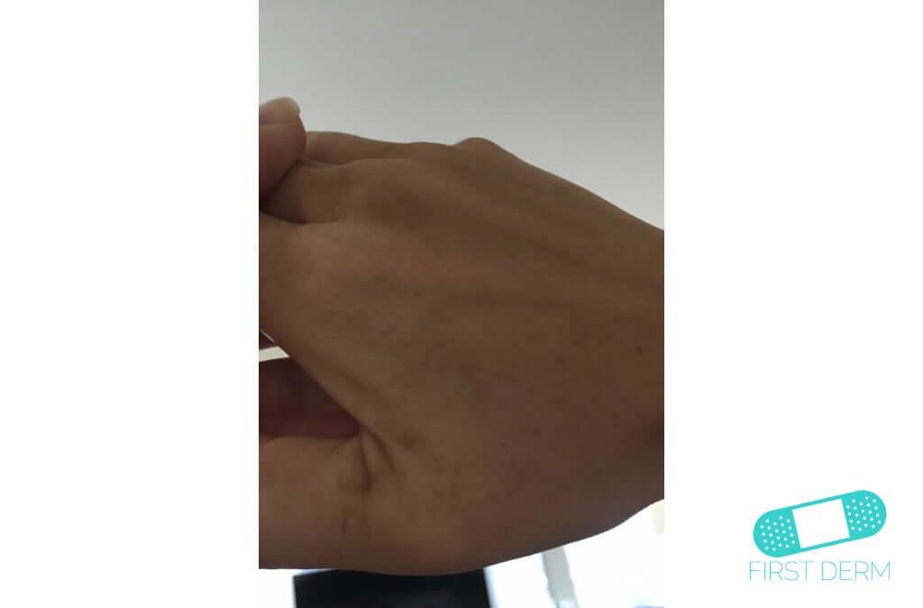 Lentigo solar (Manchas Hepáticas) (15) mano [ICD-10 L81.4]