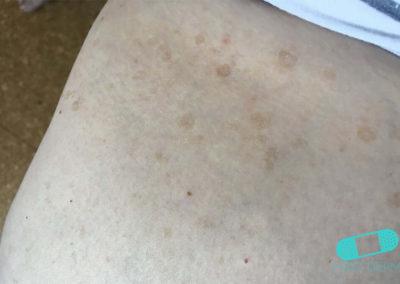 Lentigo solar (Manchas Hepáticas) (18) piel [ICD-10 L81.4]
