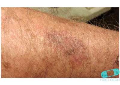 Lentigo solar (Manchas Hepáticas) (20) brazo [ICD-10 L81.4]