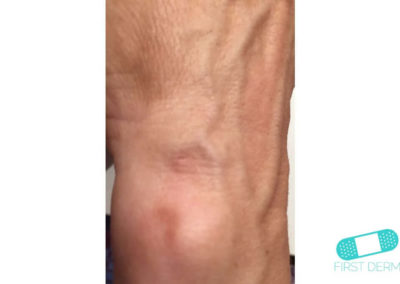 Lentigo solaris (Liver Spots) (04) leg [ICD-10 L81.4]