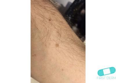 Lentigo solaris (Liver Spots) (07) arm [ICD-10 L81.4]
