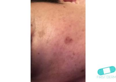 Lentigo solaris (Liver Spots) (10) left cheek [ICD-10 L81.4]