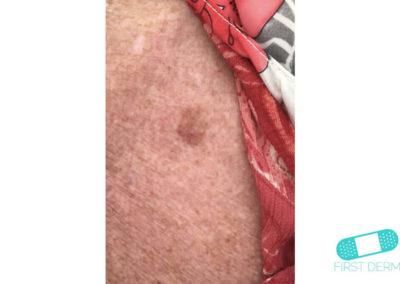 Lentigo solaris (Liver Spots) (14) skin [ICD-10 L81.4]