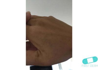 Lentigo solaris (Liver Spots) (15) right hand [ICD-10 L81.4]