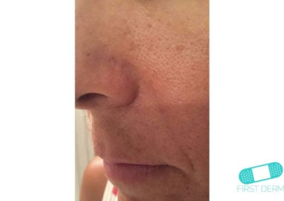 Lentigo solaris (Liver Spots) (16) nose [ICD-10 L81.4]
