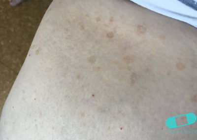 Lentigo solaris (Liver Spots) (18) trunk [ICD-10 L81.4]