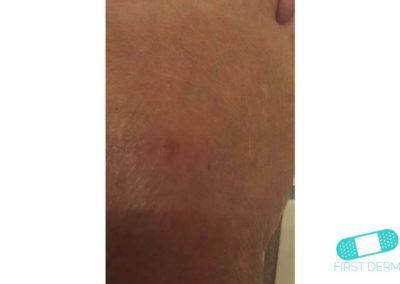 Lentigo solaris (Liver Spots) (19) wrist [ICD-10 L81.4]