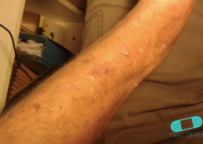 Lentigo solaris (Liver Spots) (21) right arm [ICD-10 L81.4]
