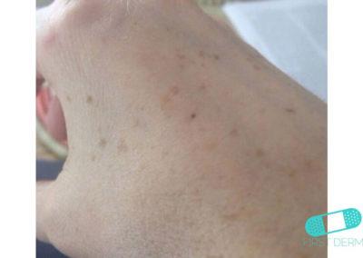 Lentigo solaris (solfläckar) (09) höger hand [ICD-10 L81.4]