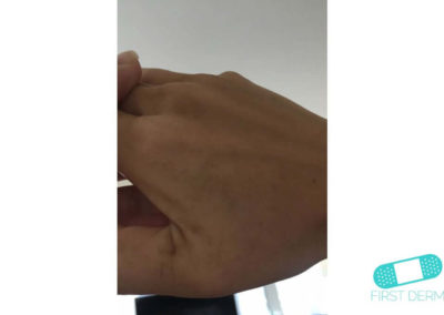 Lentigo solaris (solfläckar) (15) hand [ICD-10 L81.4]