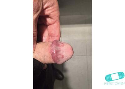 Lichen planus (04) glans penis [ICD-10 L43.9]