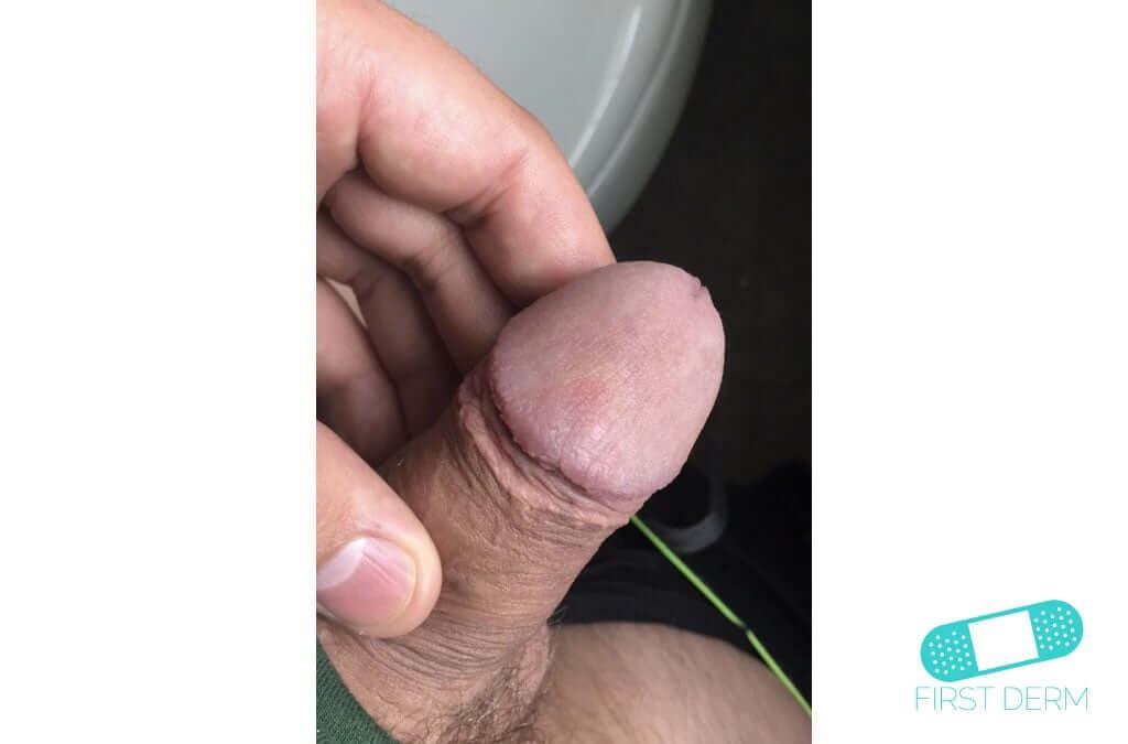 Lichen planus (08) glans penis [ICD-10 L43.9]