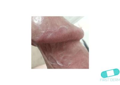 Lichen planus (11) glans penis [ICD-10 L43.9]