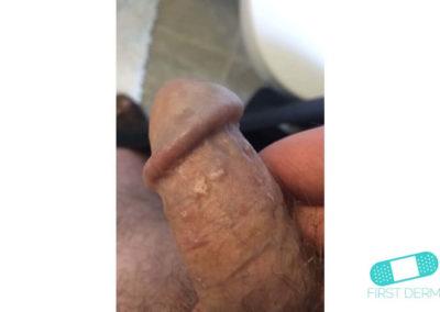 Lichen planus (13) glans penis [ICD-10 L43.9]