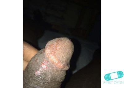 Lichen planus (15) glans penis [ICD-10 L43.9]