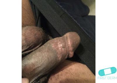 Lichen planus (19) glans penis [ICD-10 L43.9]