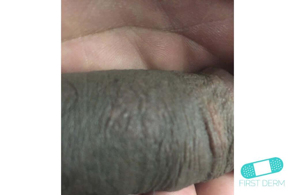 Lichen planus (20) glans penis [ICD-10 L43.9]