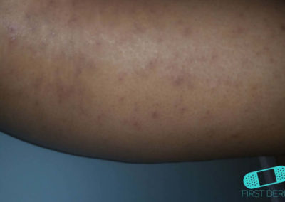 Lichen planus (21) arm [ICD-10 L43.9]