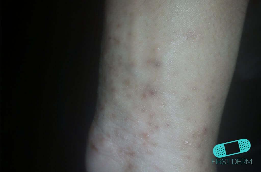 Lichen planus (22) hand wrist [ICD-10 L43.9]