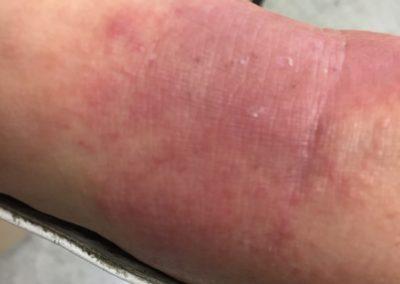 Borrelia arm [ICD-10 A69.20]