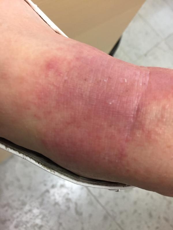Borrelia utslag Erythema Chronicum Migrans (ECM) vänster hand